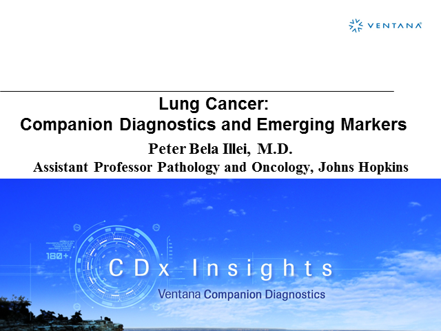 Lung cancer: companion diagnostics and emerging markers