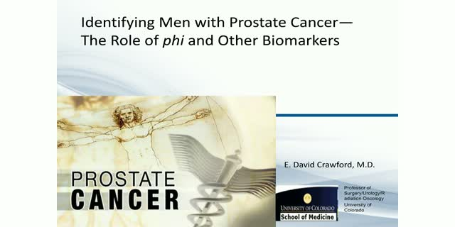 How do you Decide Whom to Biopsy for Prostate Cancer?