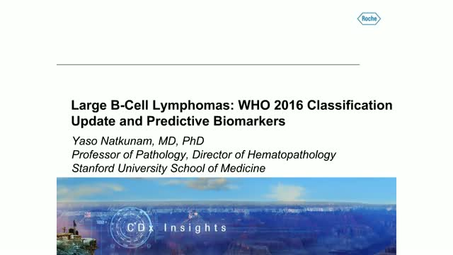 Large B-Cell Lymphomas: WHO 2016 Classification Update and Predictive Biomarkers