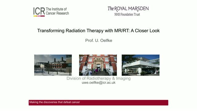Transforming Radiation Therapy With MR/RT: A Closer Look