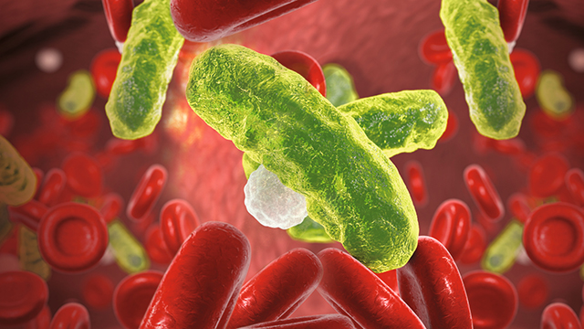 Sepsis Overview: Challenges and Solutions for Laboratories