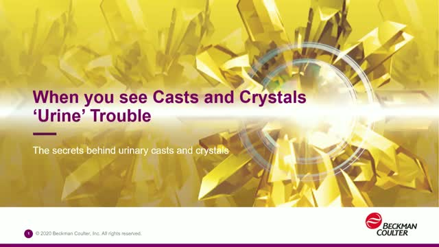 When you see Casts and Crystals 'Urine' Trouble