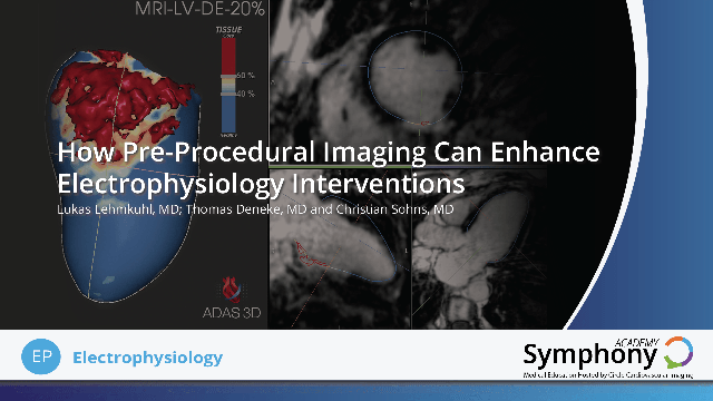 How pre-procedural imaging can enhance electrophysiological interventions